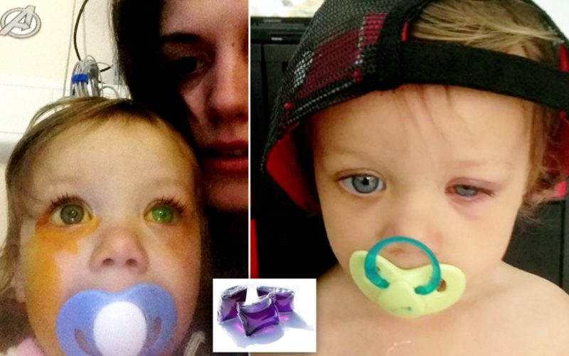Eye burn injuries risk to children from liquitabs 'on the rise'